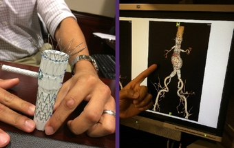 Repair of complex aneurysms has patients home in a day