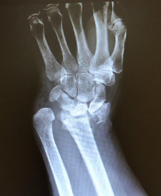wrist broken xray