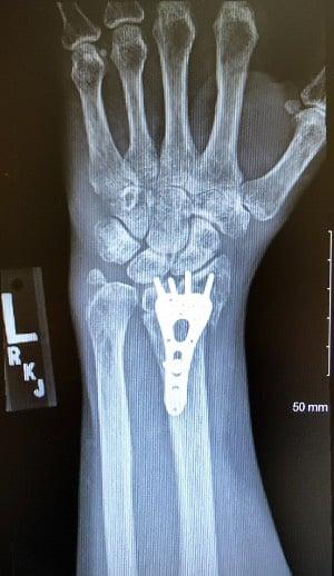 wrist fixed xray