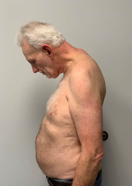Dean Spicer prior to his neck reconstruction.