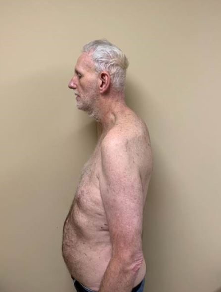 Dean Spicer after his neck reconstruction.