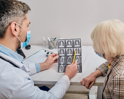 New lung cancer screening guidelines highlight importance of early detection