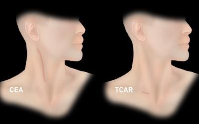 TCAR1