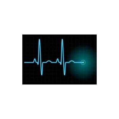Abnormal EKG Can Predict Death in Stroke Patients