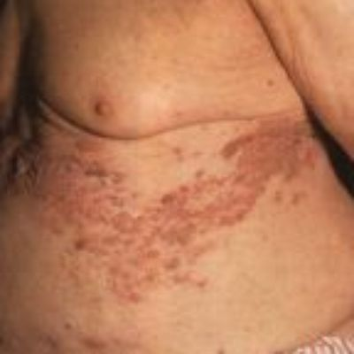Oxycodone Effective Against Shingles Pain