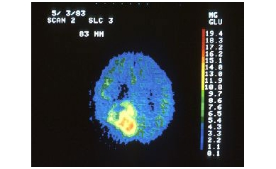 brain-tumor-4-17-09