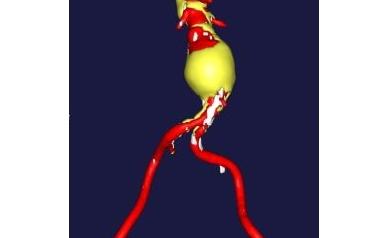 Study in Nature Medicine Establishes Major New Treatment Target in Diseased Arteries