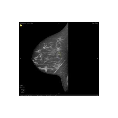 breastca2009