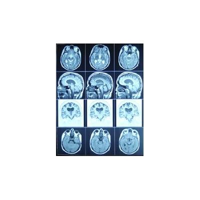 brain_2544_2544_228x293