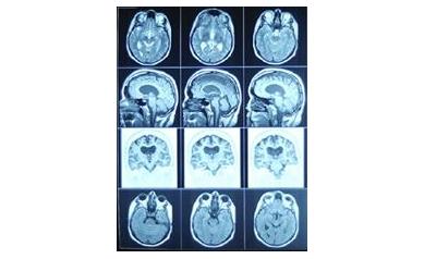 July 23-25 Garage Sale Benefits Wilmot Cancer Center Brain Tumor Research