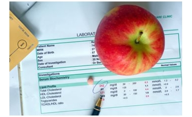 Do Your Numbers Count? New Guidelines for Cholesterol Meds