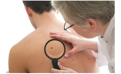 Skin Cancer: Are You at Risk?