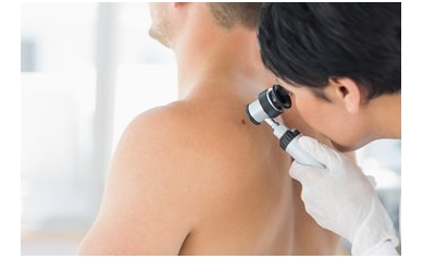 Skin Cancer Check: Know the ABCs