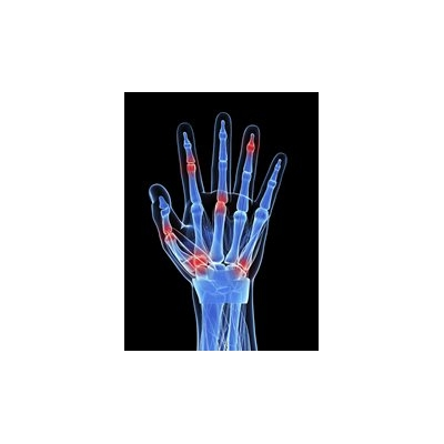 For Rheumatoid Arthritis Patients, Remission Does Not Always Mean Remission