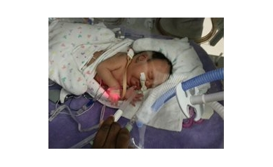Baby Girl Overcomes Multiple Medical Obstacles