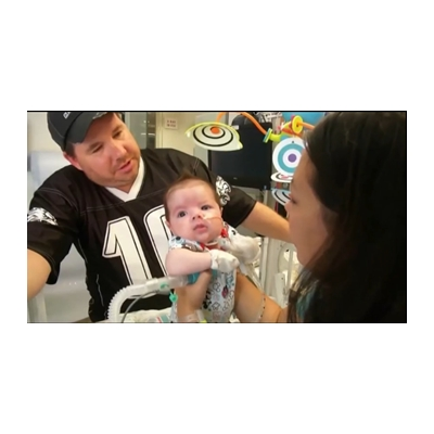 Horseheads baby suffers rare condition