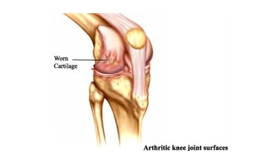 arthritis_2608_325x236