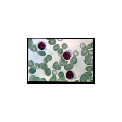 leukemiacells2009_2706