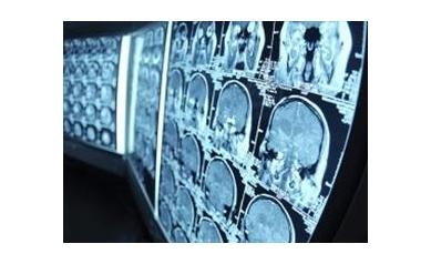 brain%20scans_2857_268x195