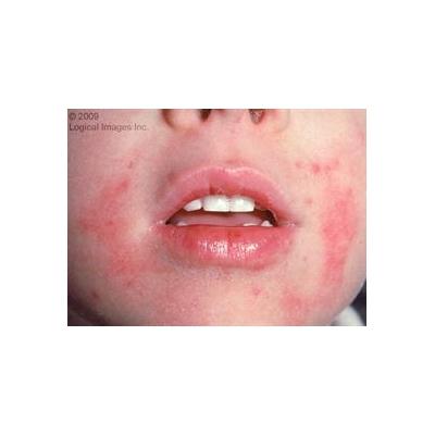 eczema_3076_935x680