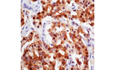 1311473620_cancer-cells_3565_421x421