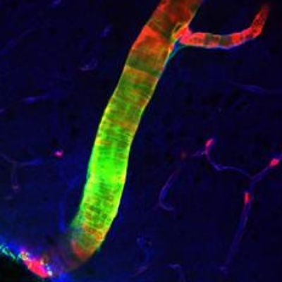Scientists Discover Previously Unknown Cleansing System in Brain