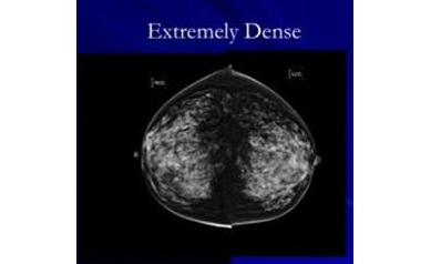 NY Law: Following Mammography, Physicians Must Notify of Breast Density