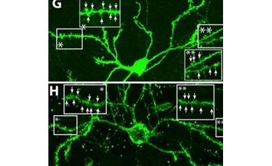 Scientists Coax Brain to Regenerate Cells Lost in Huntington's Disease