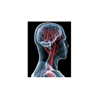 1138497161_brain%20vascular%20web_3870_300x386