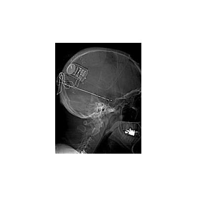 1648594035_neuropace%20x-ray%20web_3974_194x250