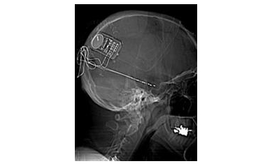 1648594035_neuropace%20x-ray%20web_3974_194x250