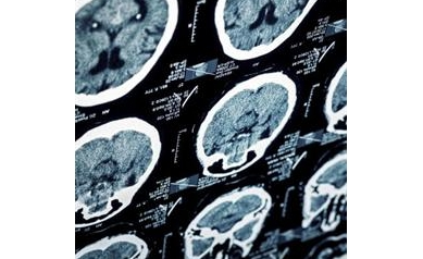 0917194744_brain%20imaging%20web_4035_400x400