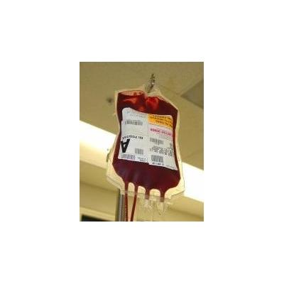 1623597203_blood%20bag2-small_4040_175x225