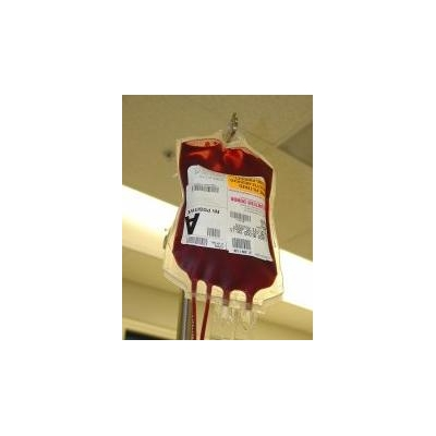 1623597203_blood%20bag2-small_4040_175x225