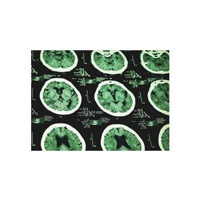 1639499123_MRI%20green_4213_426x310