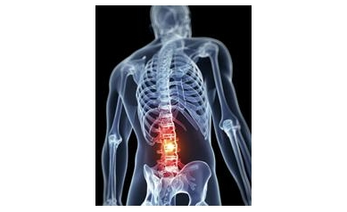 Commonly Prescribed Drug for Lower Back Pain Not Effective