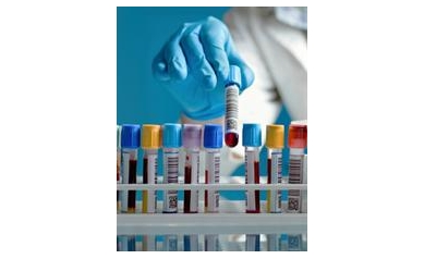 1426089721_blood%20test_4235_338x435
