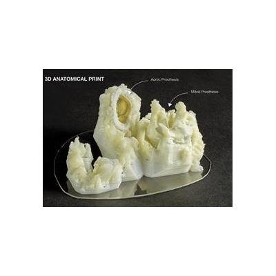 1244548033_3D_Print_Anatomical_4270_1099x799