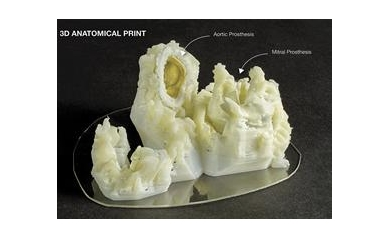 1244548033_3D_Print_Anatomical_4270_1099x799