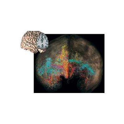 1328121824_Brain-picture_4335_326x237