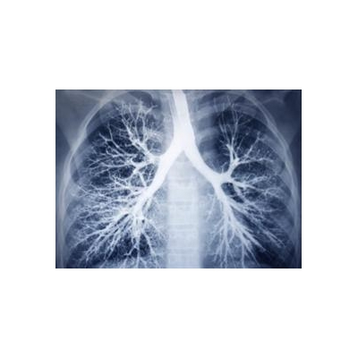1135014510_Lungs_4400_638x464