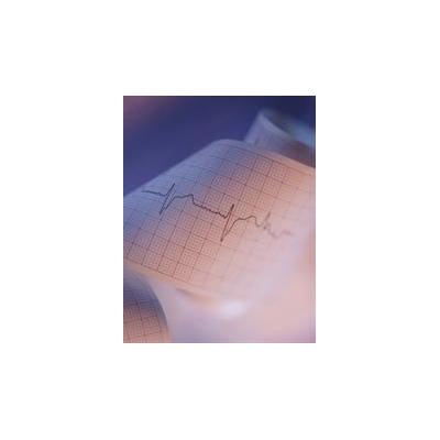1502561645_EKG%20pic_4404_337x433