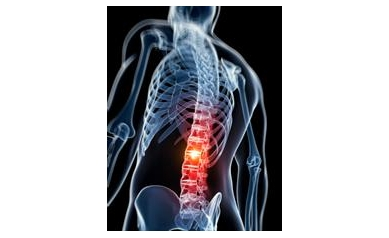 Patients Prefer Relief from Lower Back Pain Over Improved Mobility