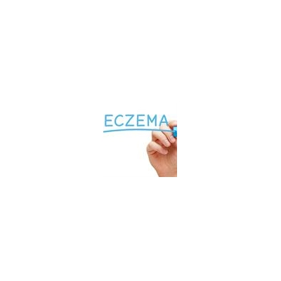 FDA Approves New Eczema Drug Tested at URMC