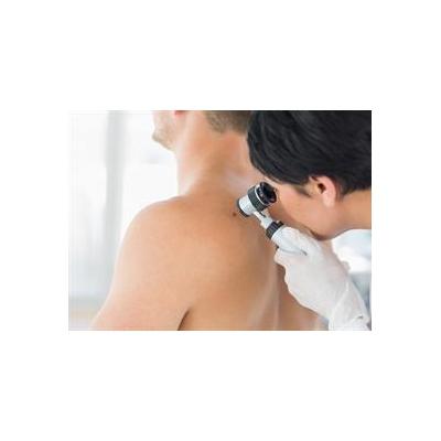 UR Medicine Offers Free Skin Cancer Screening May 20