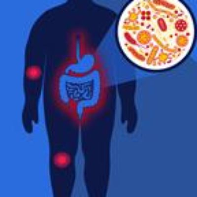 The Bugs in Your Gut Could Make You Weak in the Knees