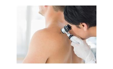 UR Medicine Offers Free Skin Cancer Screening May 12