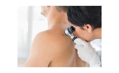 UR Medicine Offers Free Skin Cancer Screening May 12