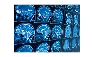NIH Extends URMC's Role in Network to Advance Neurological Care