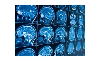 NIH Extends URMC's Role in Network to Advance Neurological Care